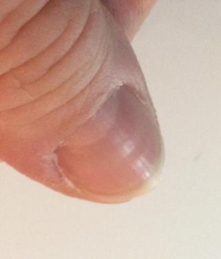 Thumb Nail Horizontal Ripples